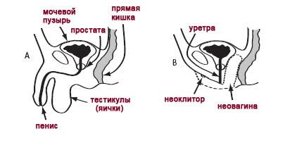 Операции на гениталиях - схема уретры