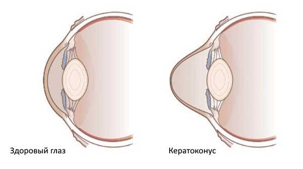Різниця меж оком з захворюванням кератоконуса і здоровим оком