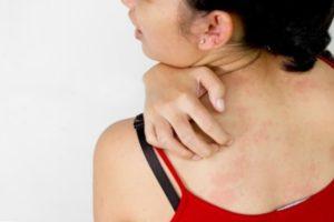 Як пов'язана алергія з психологічними проблемами